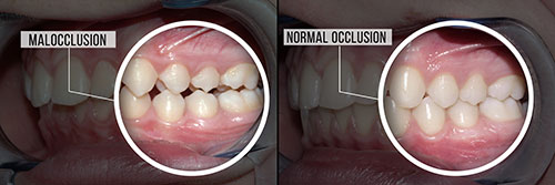 Annadale Malocclusion
