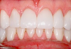 Dental Crowns Annadale