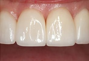 Teeth Whitening Annadale