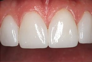 Teeth Whitening Staten Island