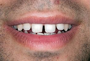 Teeth Whitening in Annadale